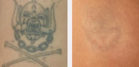 Eliminación tatuajes con láser