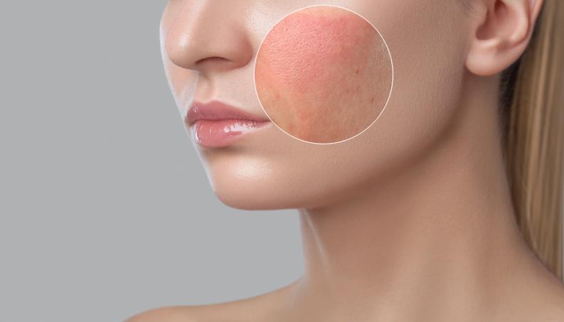 Mujer con rosacéa en el rostro